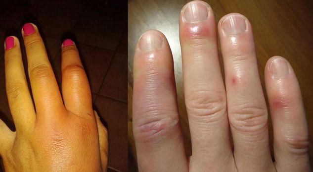 Ju janë fryrë gishtat aq shumë sa nuk ju bën as unaza e martesës! Ja çfarë fshihet pas kësaj gjendje