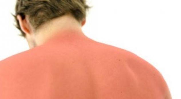 Jeni djegur nga dielli? Ja çfarë duhet të bëni