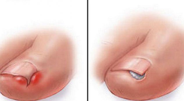 Ja si duhet të veproni kur thonjtë e këmbës rriten brenda lëkurës
