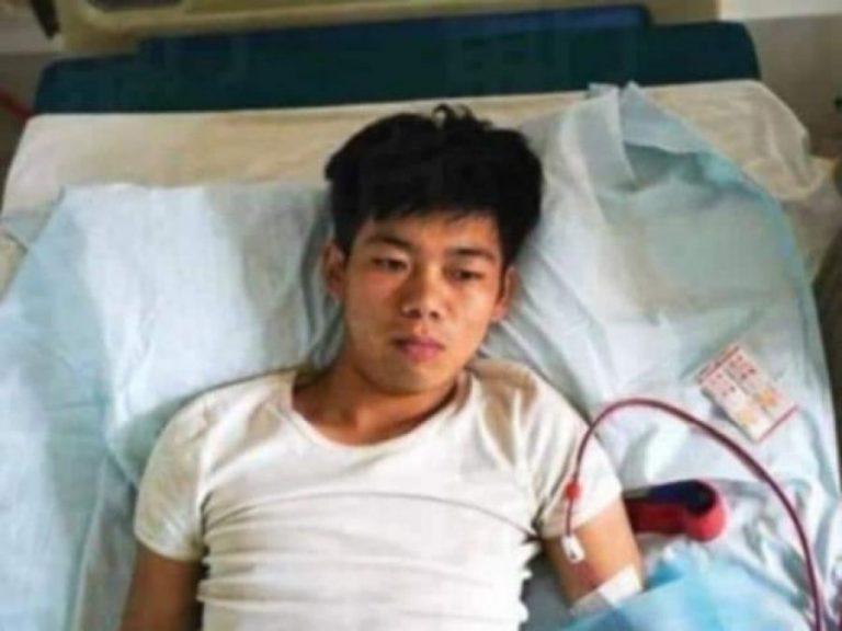 17 vjeçari shet veshkën për të blerë iPhone dhe iPad, mbetet invalid