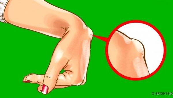 Nëse i vëreni këto gunga në kyçet e duarve, vizitoni menjëherë mjekun!