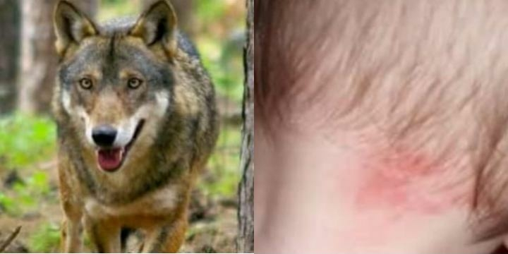 5 vjeçari nga Hani i Elezit sulmohet dhe rrëmbehet nga ujku, por shpëtohet nga xhaxhai i tij
