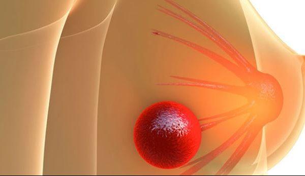 Kjo është simptoma e parë e kancerit të gjirit