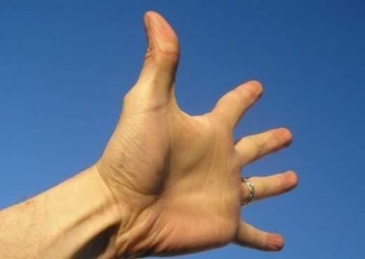 Ja arsyet e zakonshme të ënjtjes së gishtërinjve