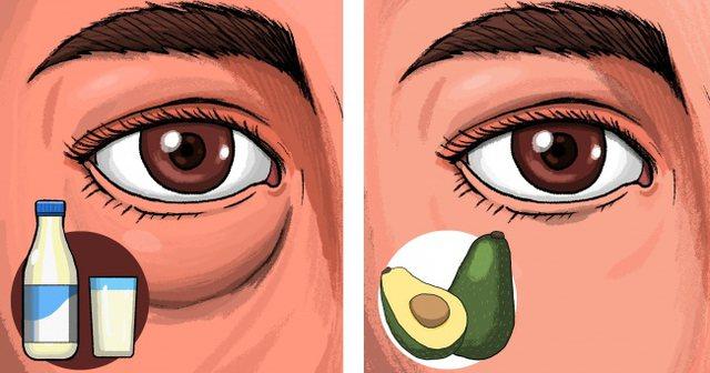 Ushqimet që iu bëjnë të zgjoheni me sy të fryrë
